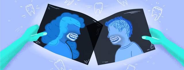 a pair of hands holding two sets of dental x-rays showing a man and woman with clenched teeth