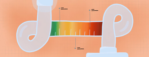 Obstructive Sleep Apnea Severity: A Closer Look image